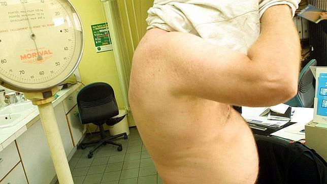 La obesidad y el sobrepeso se han convertido en una auténtica epidemia en el siglo XXI