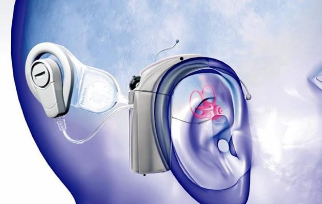 Gráfico de un implante coclear