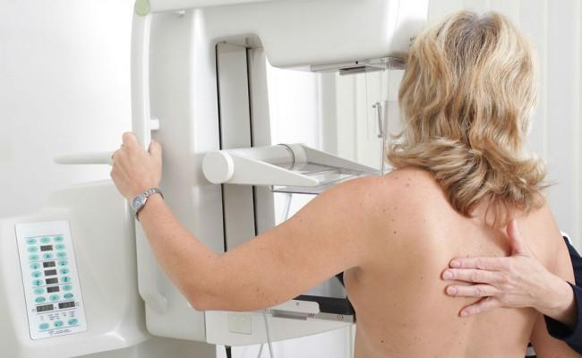 El cáncer de mama constituye uno de los tumores más frecuentes en las mujeres
