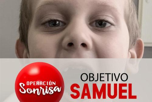samuel-operacion-sonrisa-2